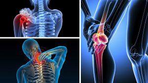 Bệnh đau xương khớp xảy ra ở nhiều vị trí khác nhau