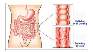 Bệnh sẽ có cảm giác đau tức vùng bụng dưới như có tảng đá đè lên, đại tiện bất thường