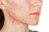 Bật bí cách trị dị ứng da mặt bằng mật ong tại nhà