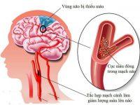 Cảnh giác với cơn thiếu máu não thoáng qua