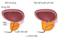 Bệnh u xơ tuyến tiền liệt là gì?Triệu chứng nhận biết như thế nào